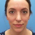 After Photo - Nose Surgery - Case #18865 - 31 year-old  -  Open Rhinoplasty/Endoscopic Browlift  -  3 months post-op - Frontal View