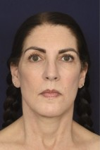 After Photo - Facial Rejuvenation - Case #18980 - Full Facial Rejuvenation - Frontal View