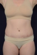 After Photo - Tummy Tuck - Case #18992 - Abdominoplasty - Frontal View