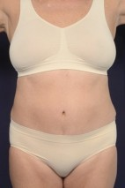 After Photo - Liposuction - Case #20828 - Trunk Liposuction - Frontal View