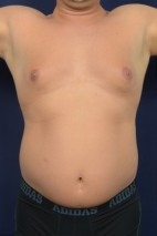 Before Photo - Liposuction - Case #20856 - Trunk Liposuction - Frontal View