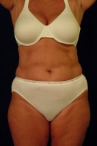 Before Photo - Liposuction - Case #21072 - Frontal View