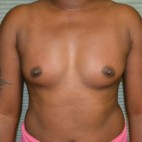 Before Photo - Breast Augmentation - Case #21117 - Breast Augmentation with Mentor MemoryGel smooth round 375cc high profile silicone gel filled breast implants. - Frontal View
