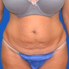 Before Photo - Tummy Tuck - Case #21125 - Frontal View
