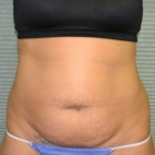 Before Photo - Tummy Tuck - Case #21134 - Frontal View