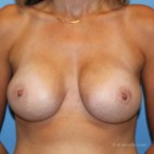 After Photo - Breast Augmentation - Case #21165 - A breast augmentation can produce the effect of a lift - Frontal View