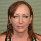 Before Photo - Facelift - Case #21197 - Frontal View