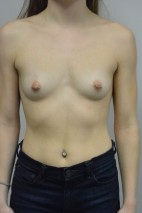 Before Photo - Breast Augmentation - Case #21306 - 23 yo woman with breast augmentation who wants a natural appearance. - Frontal View
