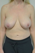 Before Photo - Breast Reduction - Case #21310 - 45-54 year old woman treated with Breast Reduction - Frontal View