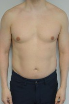 Before Photo - Gynecomastia - Case #21312 - 34-44 year old man with gynecomastia - Frontal View