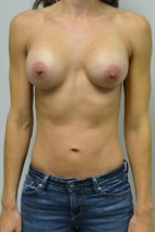 After Photo - Breast Augmentation - Case #21315 - 25-34 year old woman treated with Breast Augmentation - Frontal View