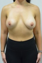 After Photo - Breast Augmentation - Case #21316 - 23 yo woman with breast asymmetry treated with breast augmentation - Frontal View