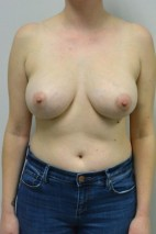 After Photo - Breast Augmentation - Case #21317 - 34-44 year old woman with breast asymmetry treated with breast augmentation using Ideal Implants - Frontal View