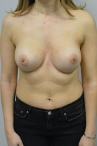 After Photo - Breast Augmentation - Case #21318 - 25-34 year old woman treated with Breast Augmentation using Ideal implants - Frontal View