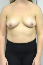 Before Photo - Breast Augmentation - Case #21319 - 25-34 year old woman treated with Breast Augmentation using Ideal implants - Frontal View