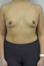 Before Photo - Breast Augmentation - Case #21320 - 33-44 year old woman with Breast Augmentation using Ideal Implants - Frontal View