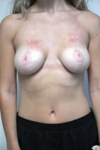 After Photo - Breast Reduction - Case #21322 - 18-24 year old woman treated with Breast Reduction - Frontal View