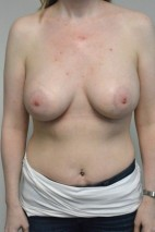 After Photo - Breast Augmentation - Case #21329 - 34-44 year old woman  treated with breast augmentation using Ideal Implants - Frontal View