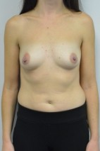 Before Photo - Breast Augmentation - Case #21334 - 34-44 year old woman treated with breast augmentation using Ideal Implants - Frontal View