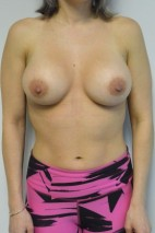 After Photo - Breast Augmentation - Case #21335 - 34-44 year woman treated with microtextured high profile cohesive silicone gel implants.   - Frontal View