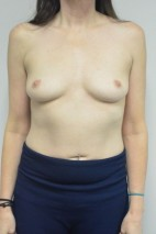 Before Photo - Breast Augmentation - Case #21336 - 45-55 year woman treated with Ideal Structured Saline Implants - Frontal View