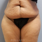 Before Photo - Tummy Tuck - Case #21351 - Abdominoplasty - Frontal View