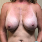 Before Photo - Breast Lift - Case #21447 - Removal of Implants and Mastopexy  - Frontal View