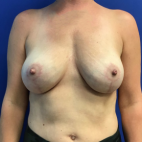 After Photo - Breast Lift - Case #21447 - Removal of Implants and Mastopexy  - Frontal View
