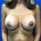 After Photo - Breast Augmentation - Case #21448 - Frontal View