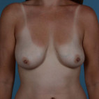 Before Photo - Breast Lift - Case #21477 - Breast augmentation with Full Lift - Frontal View