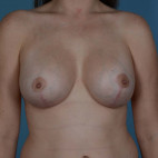 After Photo - Breast Lift - Case #21477 - Breast augmentation with Full Lift - Frontal View