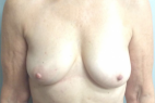 Before Photo - Breast Reconstruction - Case #21487 - Breast Reconstruction on a 68 year old female - Frontal View