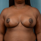 After Photo - Breast Reduction - Case #21492 - 39 year old female desires smaller breasts. - Frontal View