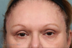 After Photo - Eyelid Surgery - Case #21506 - Upper and Lower Eyelid Lift with Lateral Brow Lift - Frontal View