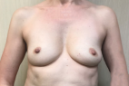 Before Photo - Breast Augmentation - Case #21511 - Breast Augmentation on a 46 year old woman - Frontal View