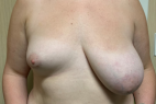 Before Photo - Breast Augmentation - Case #21512 - Left Breast Reduction and Right Breast Augmentation on a 22 year old patient - Frontal View