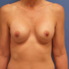 Before Photo - Breast Augmentation - Case #21519 - 49 year old - Breast Implant Exchange with Complete Circumferential Capsulectomy  – Inframammary Incision – Smooth Round High Cohesive Gel with Moderate Extra Projection – 400cc   2 ½ months post-op - Frontal View