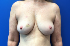 Before Photo - Breast Reconstruction - Case #21528 - Breast Reconstruction on a 63 year old female patient - Frontal View