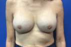 After Photo - Breast Revision - Case #21538 - Implant Replacement on a 59 year old female - Frontal View