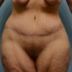 After Photo - Plastic Surgery After Dramatic Weight Loss - Case #21541 - Abdominoplasty in Massive Weight Loss patient - Frontal View