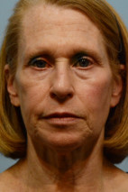 Before Photo - Facial Rejuvenation - Case #21543 - Facelift with facial fat grafting, browlift - Frontal View
