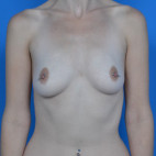 Before Photo - Breast Augmentation - Case #21546 - Breast Augmentation, Asymmetry - Frontal View