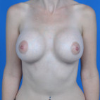 After Photo - Breast Augmentation - Case #21546 - Breast Augmentation, Asymmetry - Frontal View