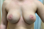 Before Photo - Breast Revision - Case #21552 - 40 year old female remove and replace implants - Frontal View