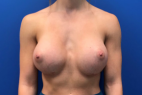 After Photo - Breast Augmentation - Case #21588 - Breast Augmentation on a 27 year old female - Frontal View