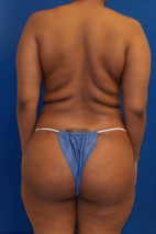 Before Photo - Buttock Lift - Case #21981 - Brazilian Buttock Lift  - Posterior View