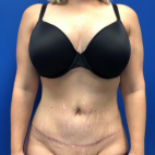 After Photo - Tummy Tuck - Case #22020 - Lipoabdominoplasty on a 32 year old female - Frontal View