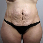 Before Photo - Tummy Tuck - Case #22041 - Tummy Tuck Patient 61 - Frontal View