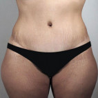 After Photo - Tummy Tuck - Case #22041 - Tummy Tuck Patient 61 - Frontal View