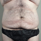 Before Photo - Tummy Tuck - Case #22044 - Tummy Tuck / Body Lift Patient 1 - Frontal View